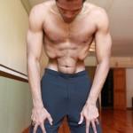 Tiesiųjų pilvo raumenų atskyrimas (nauli)